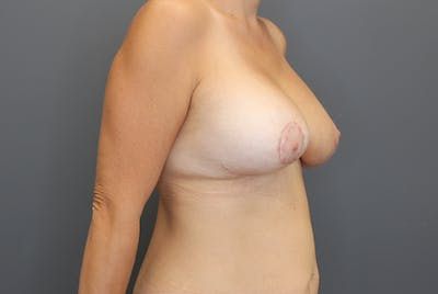 Breast Augmentation Revision Gallery - Patient 9863628 - Image 8