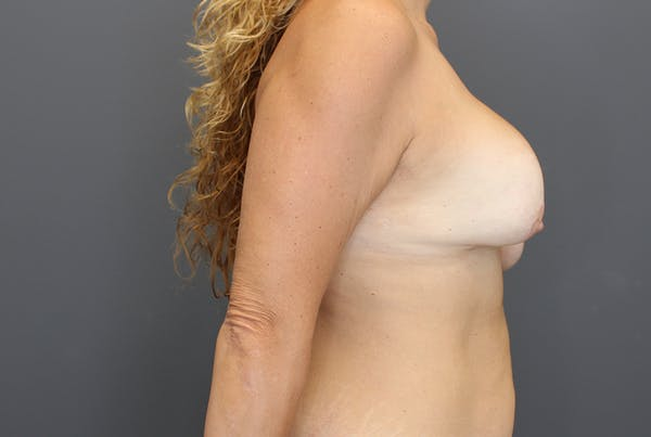 Breast Augmentation Revision Gallery - Patient 9863628 - Image 9