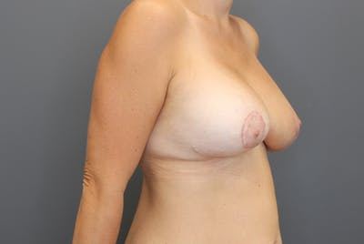 Breast Augmentation Revision Gallery - Patient 9863628 - Image 10