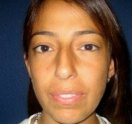Rhinoplasty Gallery - Patient 4447364 - Image 1