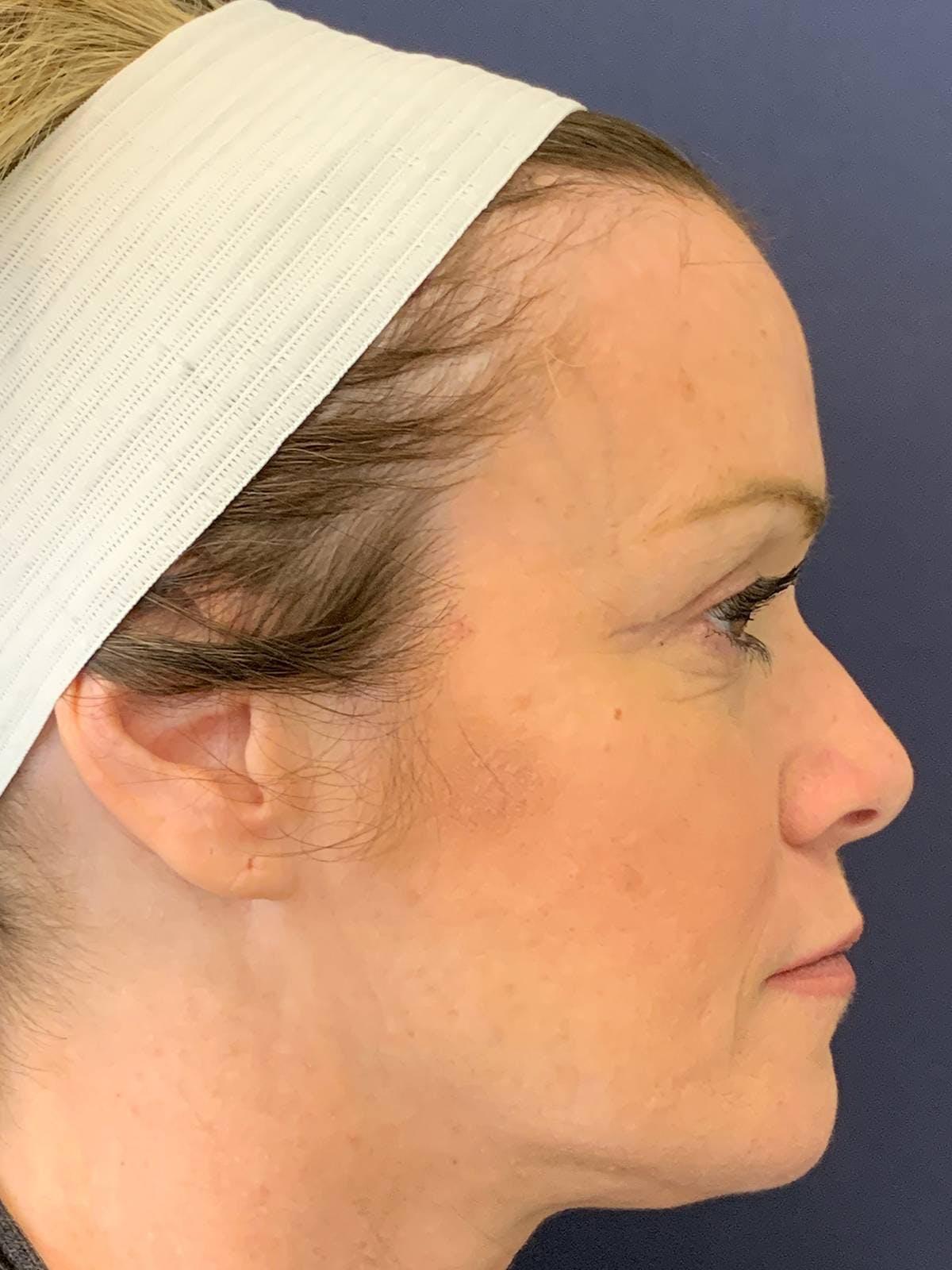 Blepharoplasty (Eyelid Surgery) Gallery - Patient 4447876 - Image 6