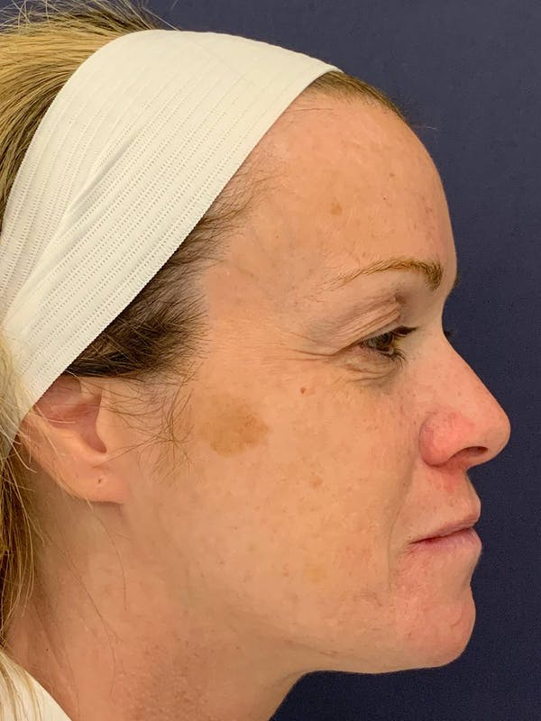 Blepharoplasty (Eyelid Surgery) Gallery - Patient 4447876 - Image 5