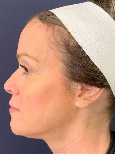 Blepharoplasty (Eyelid Surgery) Gallery - Patient 4447876 - Image 4