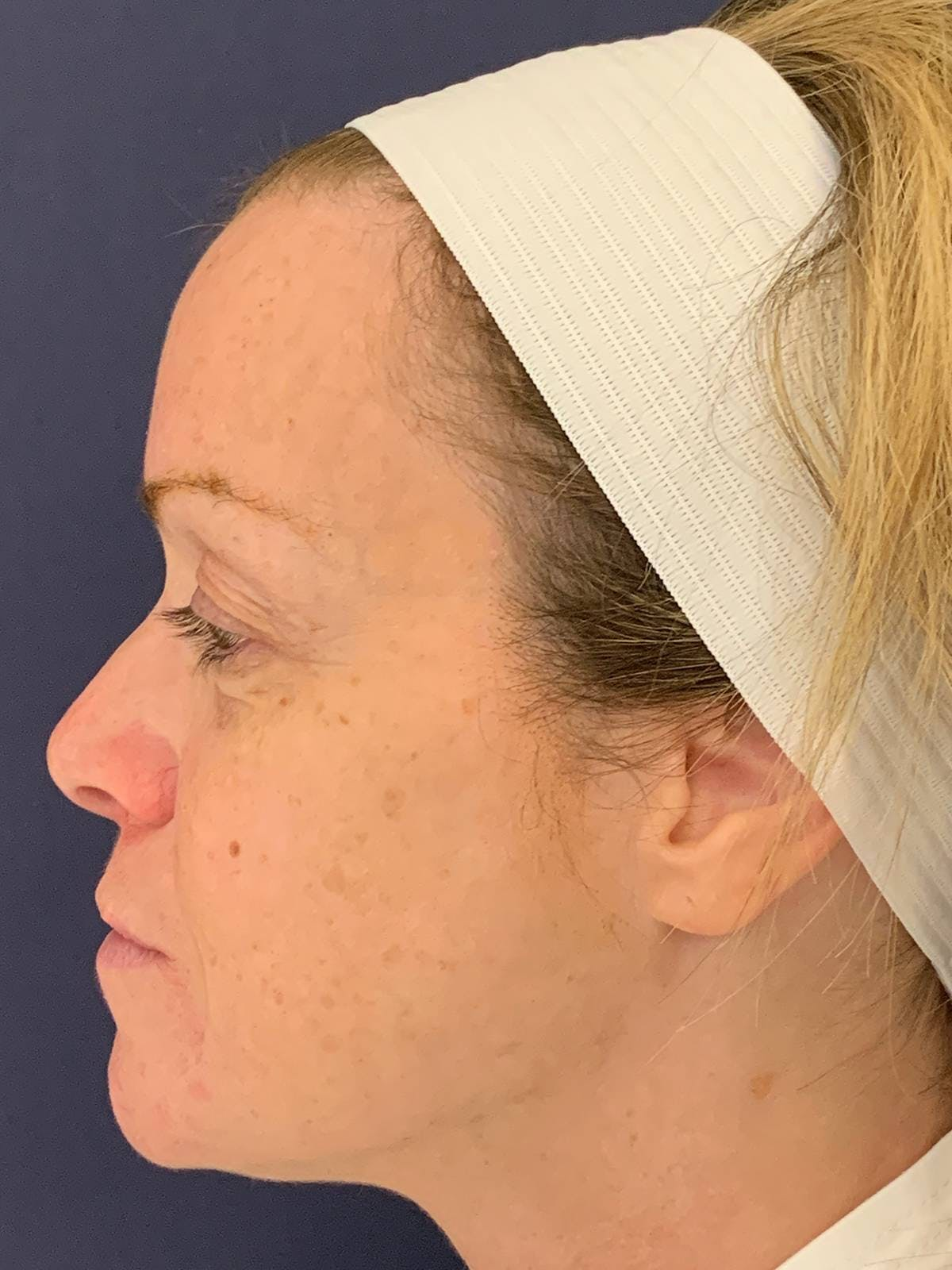 Blepharoplasty (Eyelid Surgery) Gallery - Patient 4447876 - Image 3