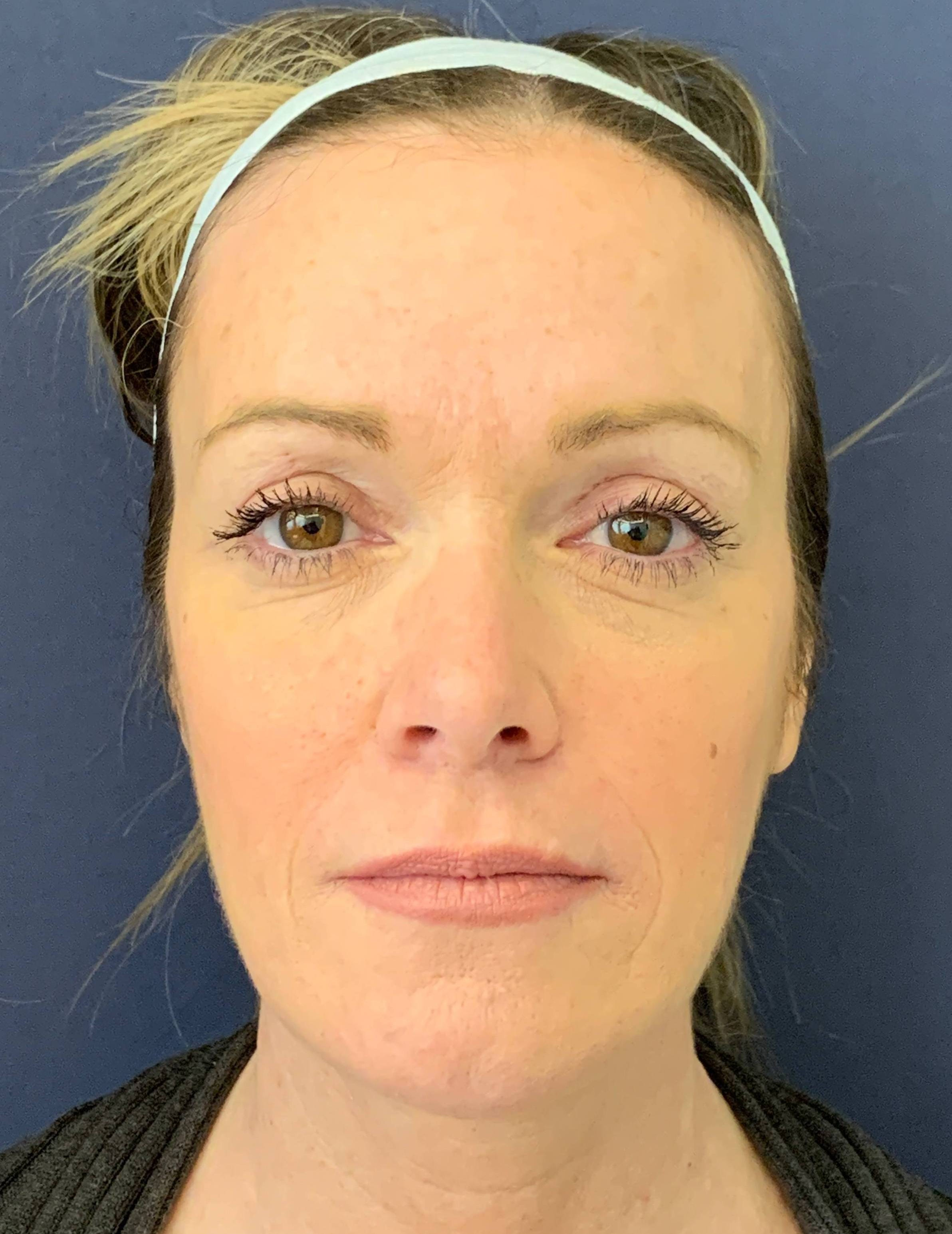 Blepharoplasty (Eyelid Surgery) Gallery - Patient 4447876 - Image 2