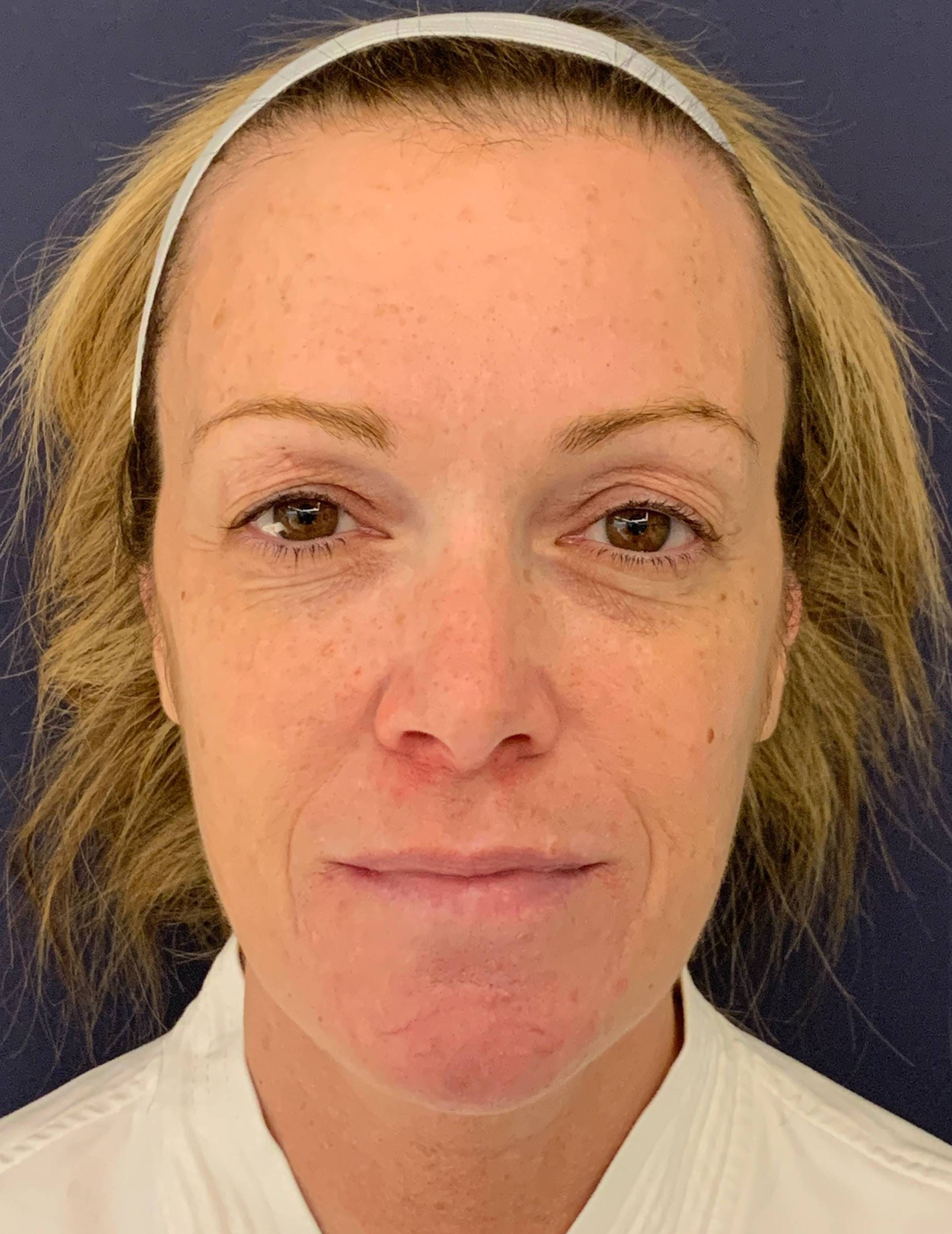 Blepharoplasty (Eyelid Surgery) Gallery - Patient 4447876 - Image 1