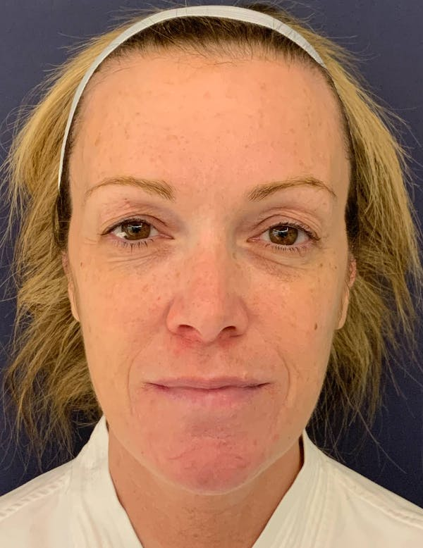Blepharoplasty (Eyelid Surgery) Gallery - Patient 4447876 - Image 1