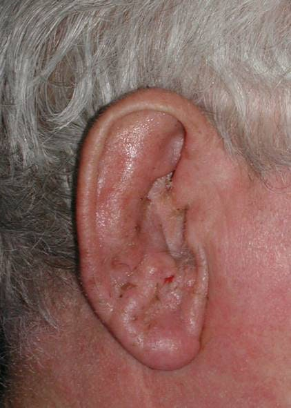 Ear Repair Gallery - Patient 4448187 - Image 2