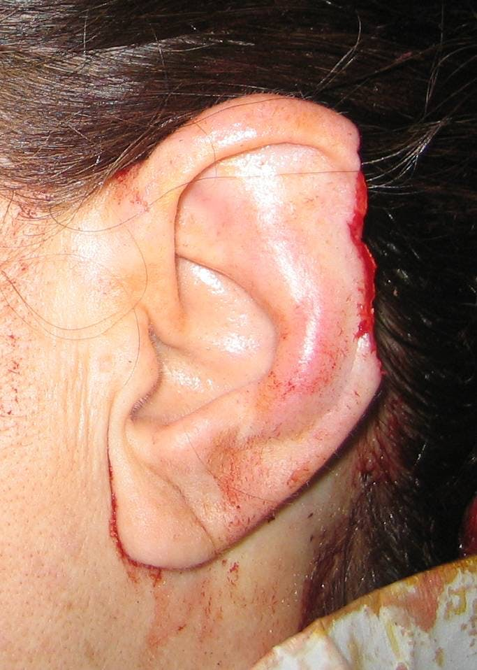 Ear Repair Gallery - Patient 4448225 - Image 1