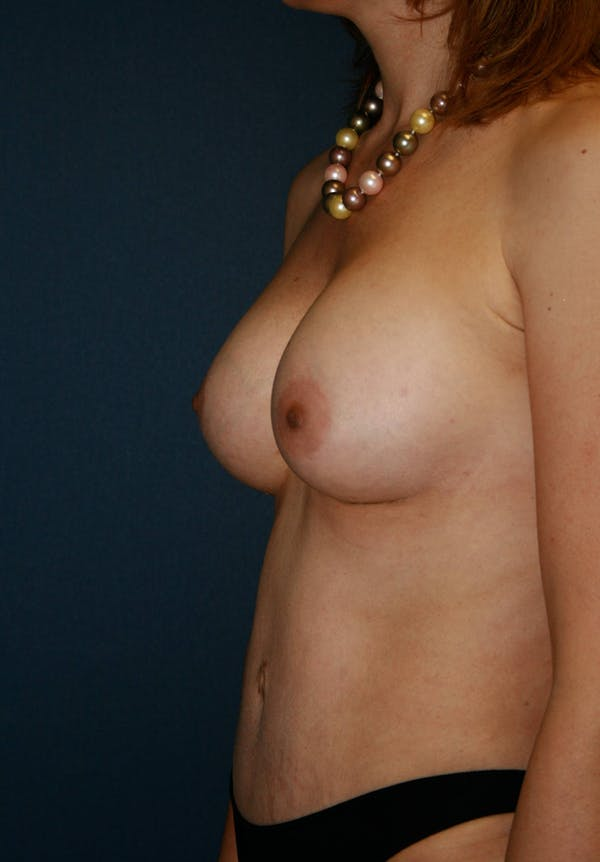 Tummy Tuck (Abdominoplasty) Gallery - Patient 4448620 - Image 4