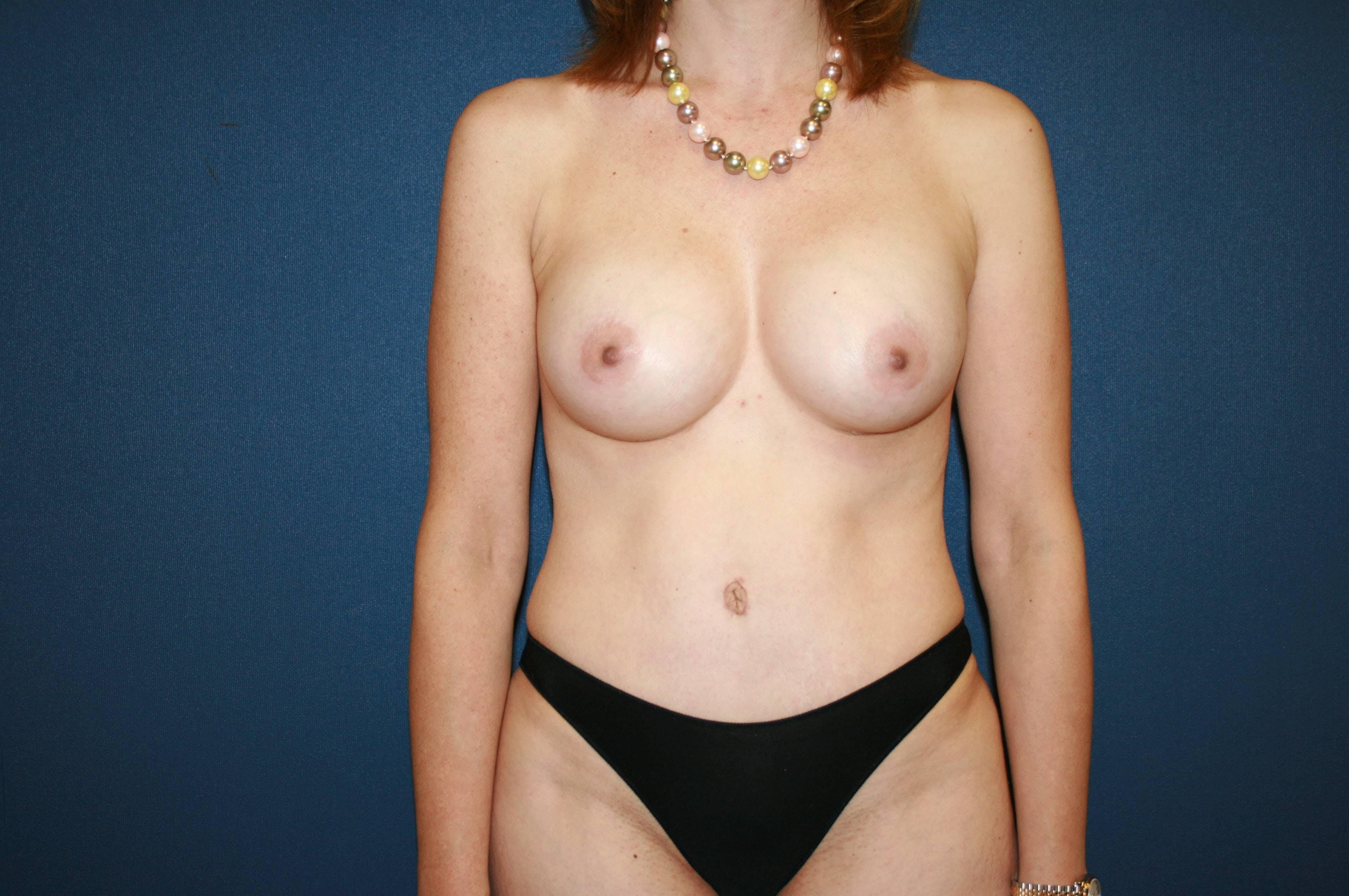 Tummy Tuck (Abdominoplasty) Gallery - Patient 4448620 - Image 2