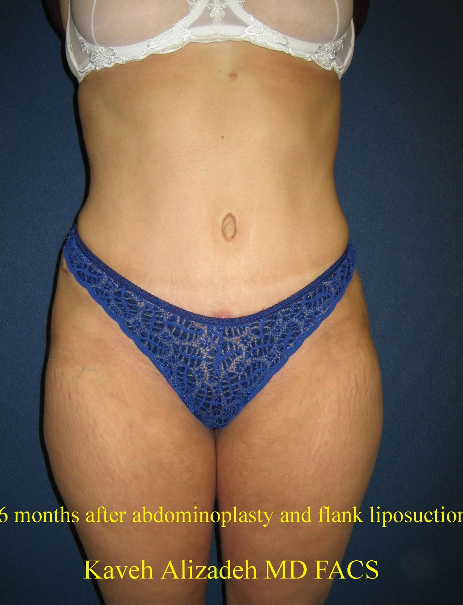 Tummy Tuck (Abdominoplasty) Gallery - Patient 4448730 - Image 2