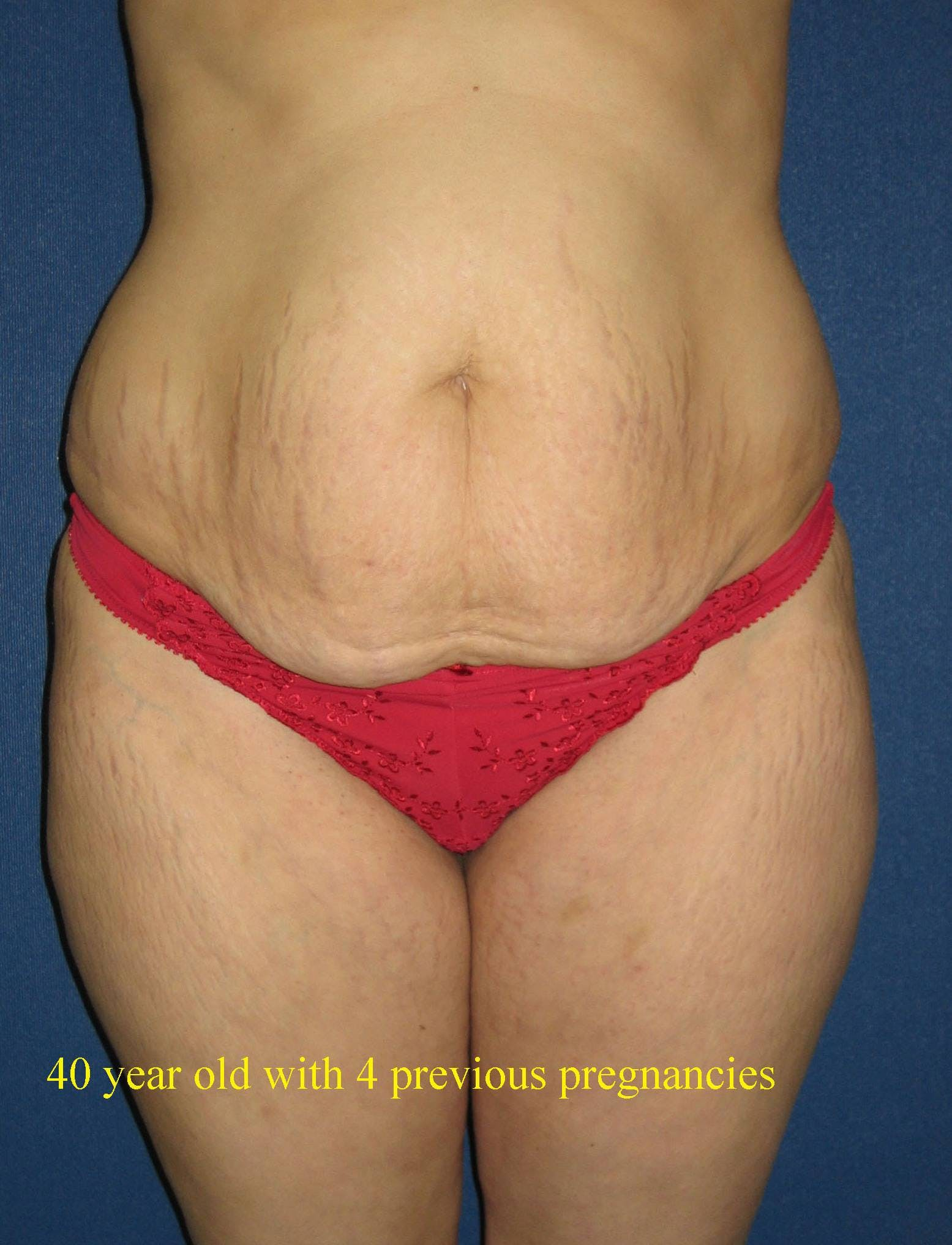 Tummy Tuck (Abdominoplasty) Gallery - Patient 4448730 - Image 1