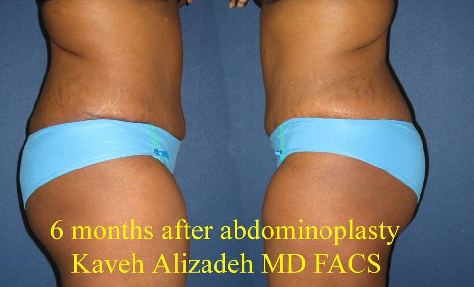 Tummy Tuck (Abdominoplasty) Gallery - Patient 4448769 - Image 4