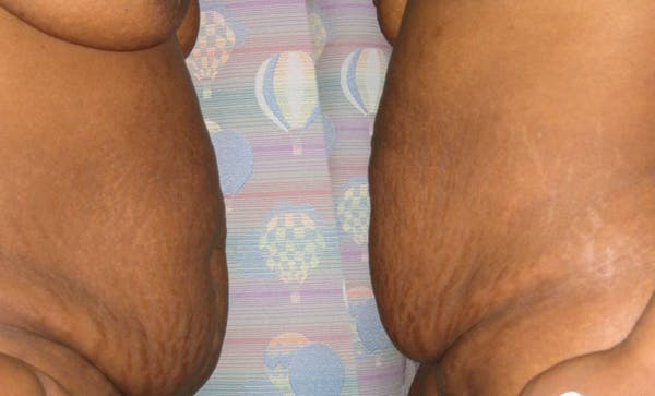 Tummy Tuck (Abdominoplasty) Gallery - Patient 4448769 - Image 3