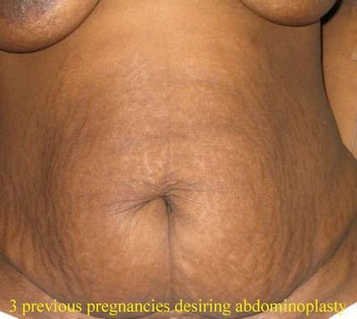 Tummy Tuck (Abdominoplasty) Gallery - Patient 4448769 - Image 1