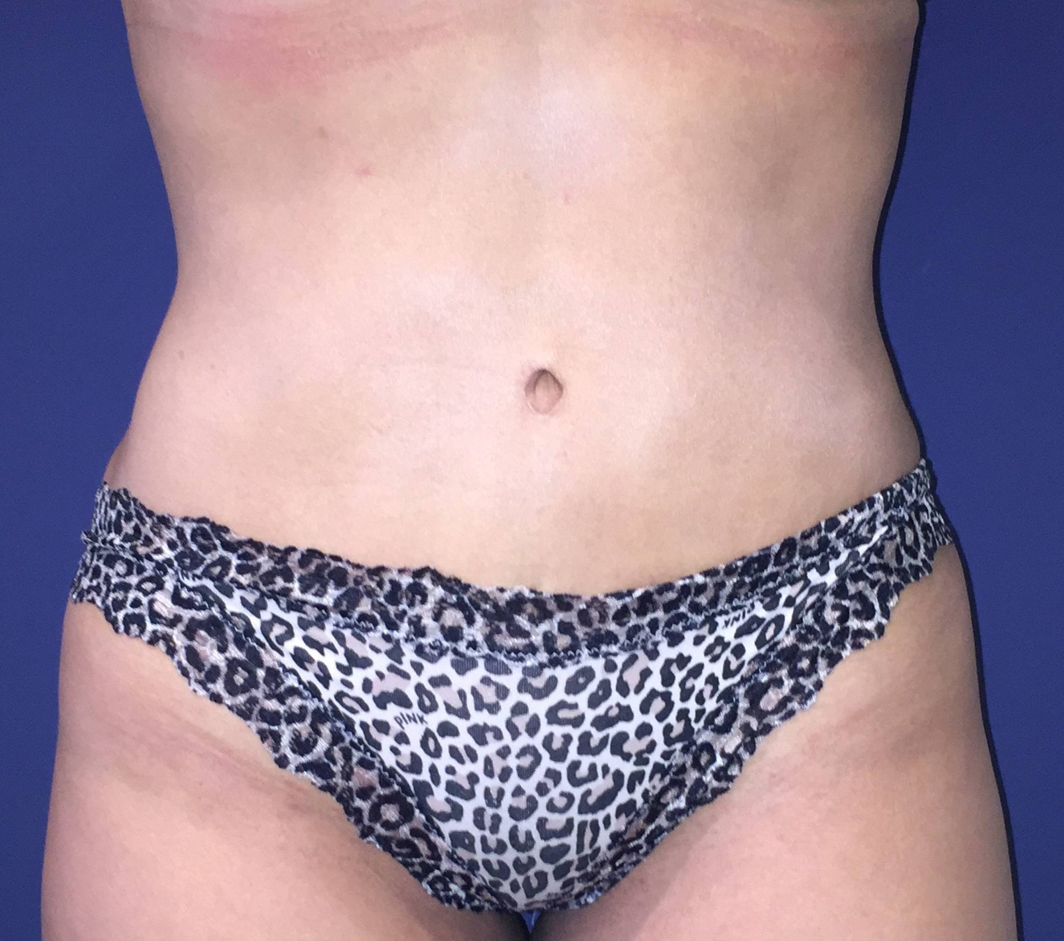 Tummy Tuck (Abdominoplasty) Gallery - Patient 4448805 - Image 2