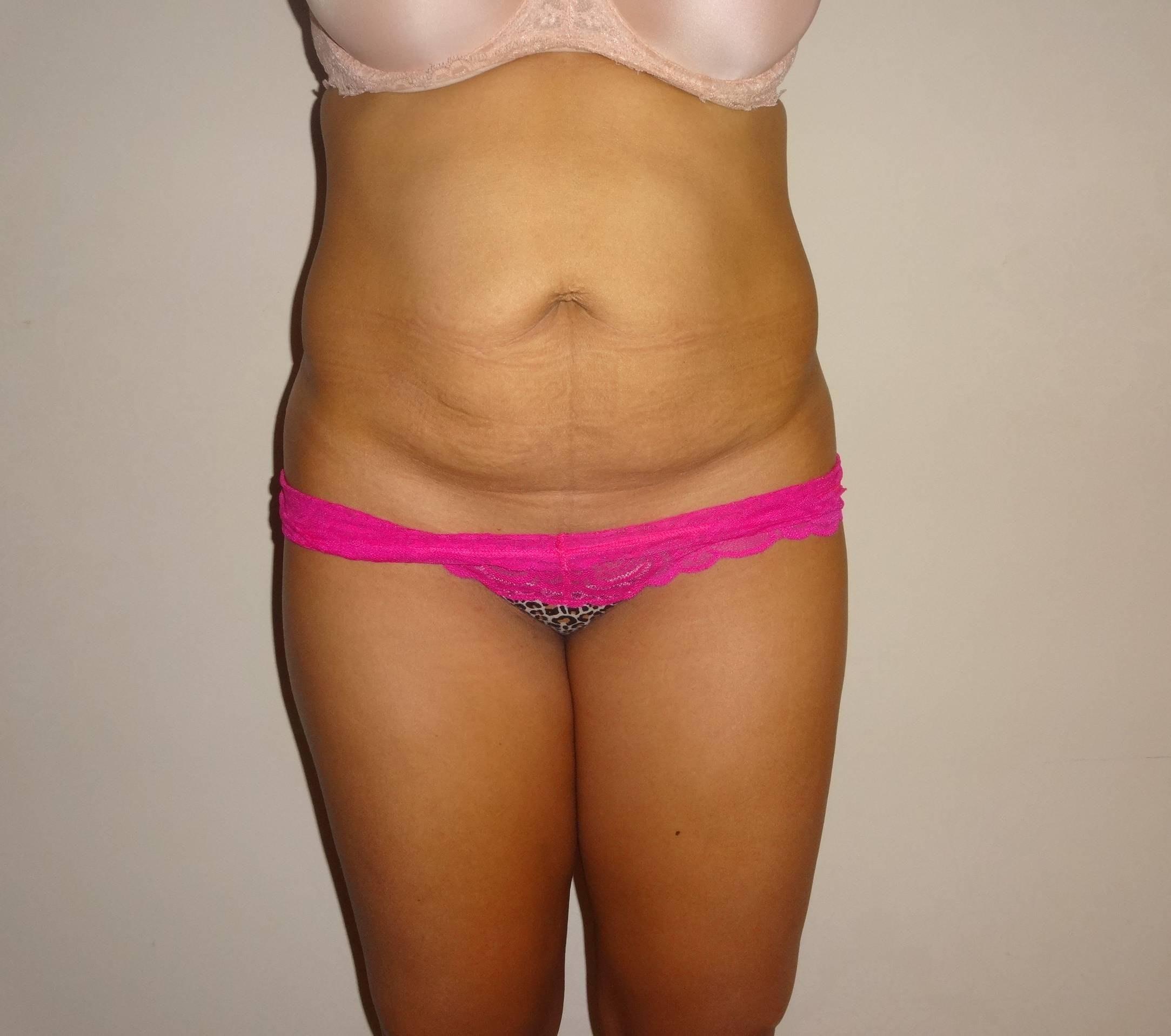 Tummy Tuck (Abdominoplasty) Gallery - Patient 4448805 - Image 1