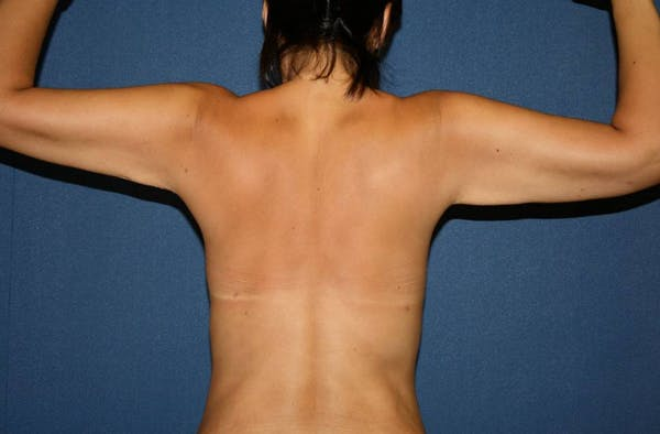Liposuction Gallery - Patient 4452215 - Image 2