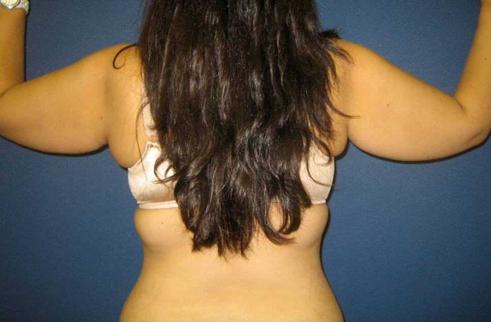 Liposuction Gallery - Patient 4452215 - Image 1