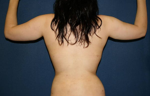 Liposuction Gallery - Patient 4452276 - Image 4