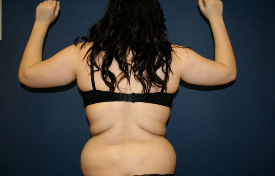 Liposuction Gallery - Patient 4452276 - Image 3
