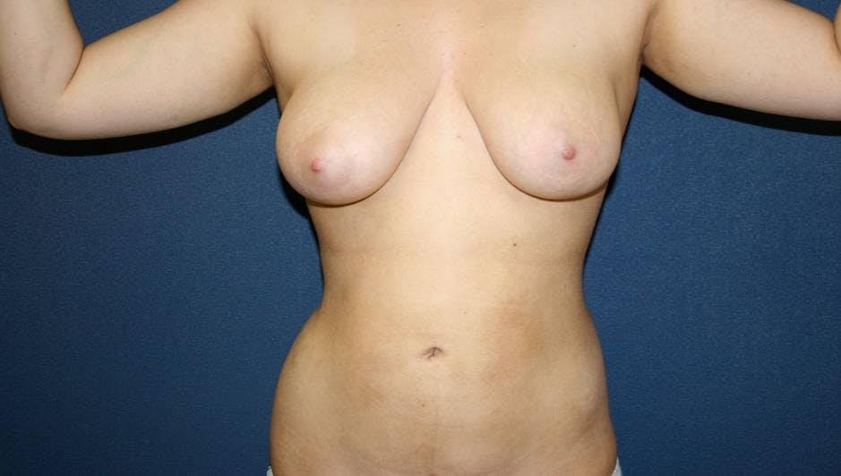 Liposuction Gallery - Patient 4452276 - Image 2