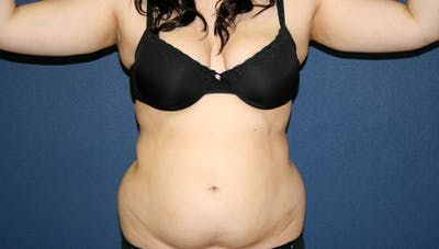 Liposuction Gallery - Patient 4452276 - Image 1