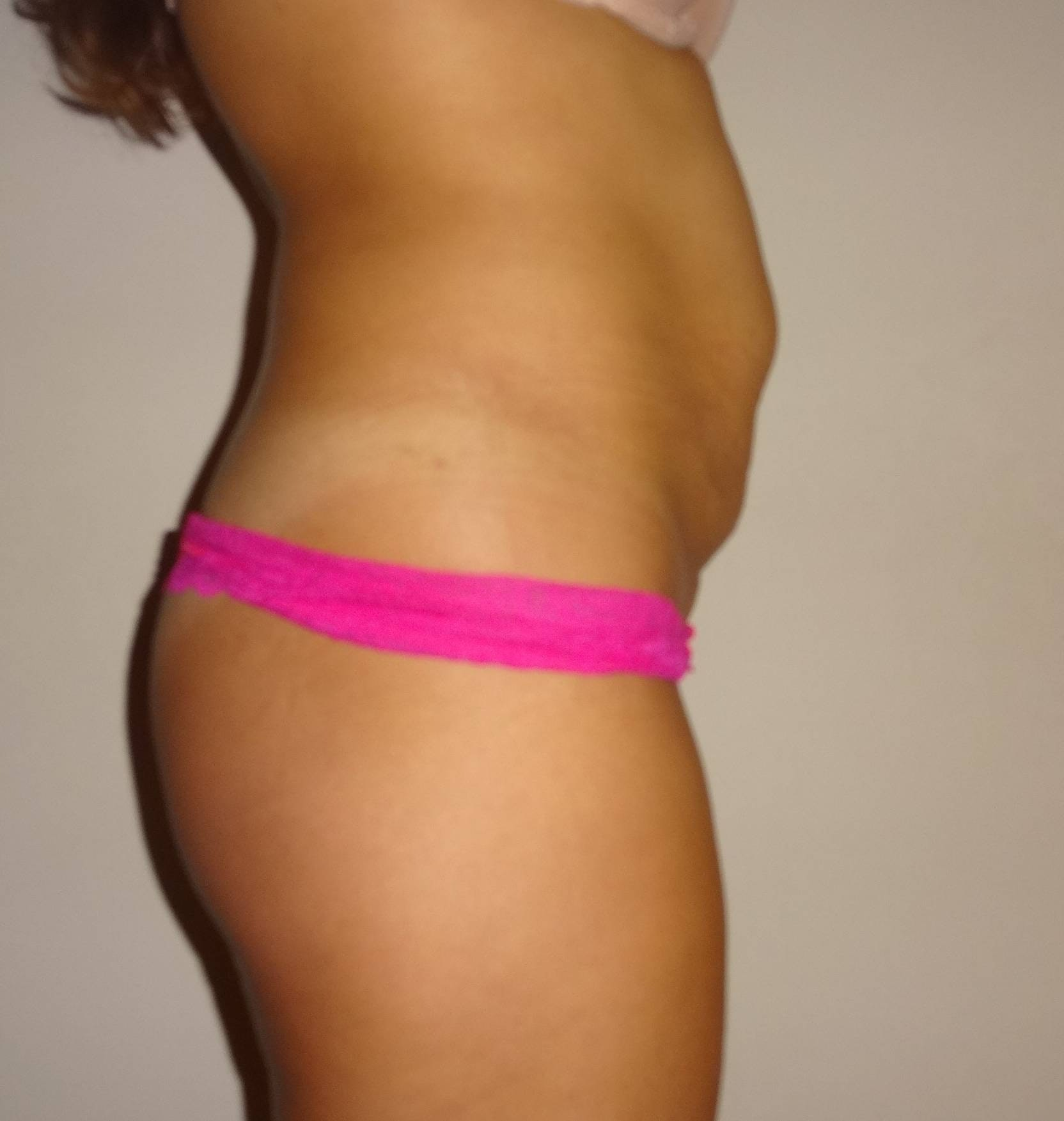 Liposuction Gallery - Patient 4452356 - Image 3