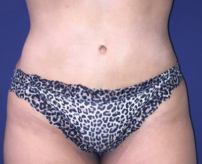 Liposuction Gallery - Patient 4452356 - Image 2