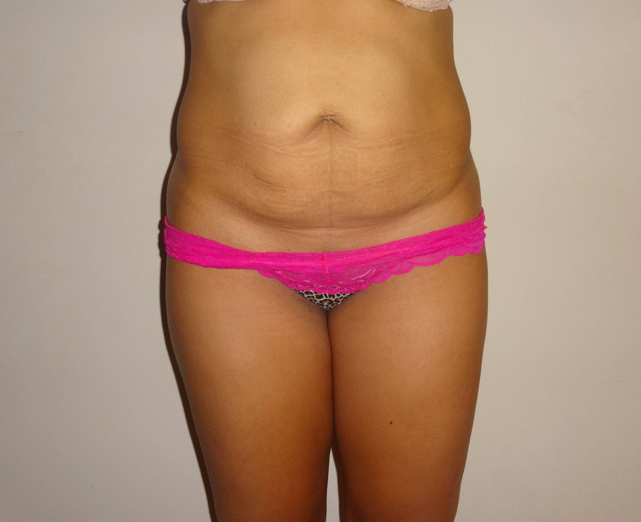 Liposuction Gallery - Patient 4452356 - Image 1