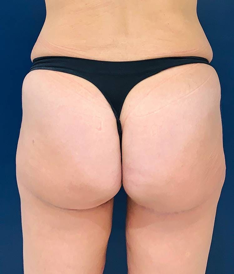 Brazilian Buttock Augmentation Gallery - Patient 4452425 - Image 2