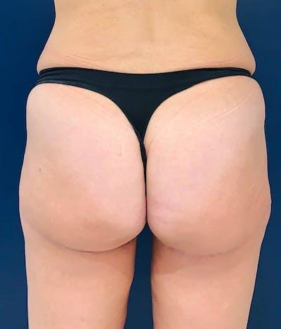 Brazilian Buttock Augmentation Gallery - Patient 4452425 - Image 2