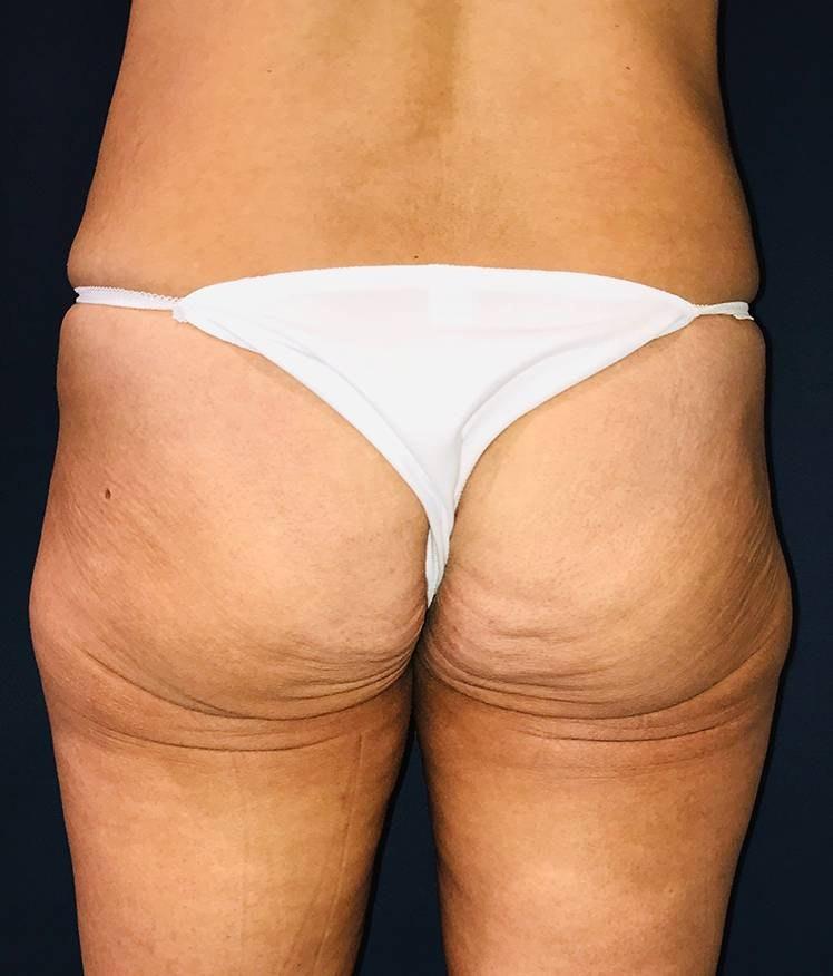 Brazilian Buttock Augmentation Gallery - Patient 4452425 - Image 1