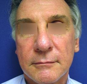 Sculptra™ Gallery - Patient 4452785 - Image 1