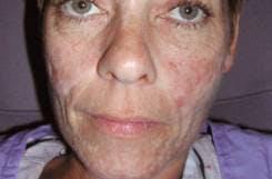 Scar Treatment Gallery - Patient 4452882 - Image 1