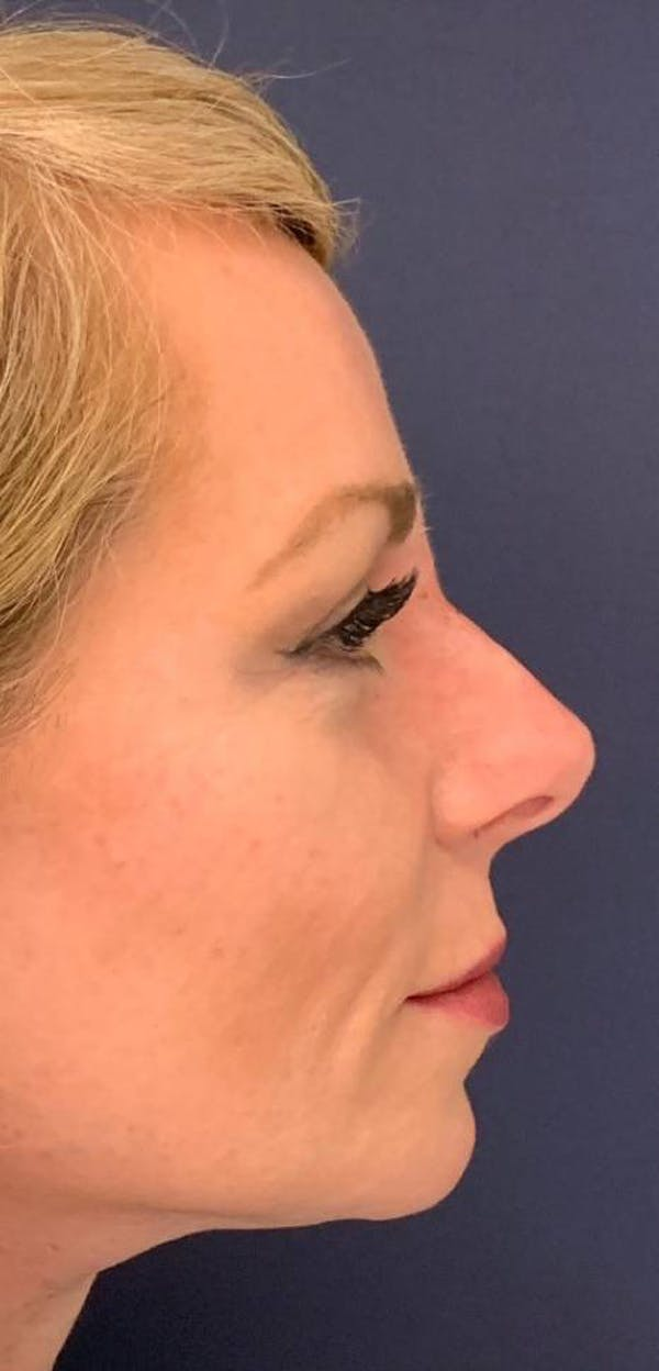 Dermal Fillers Gallery - Patient 4453298 - Image 4