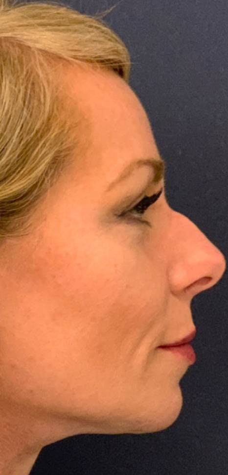 Dermal Fillers Gallery - Patient 4453298 - Image 3