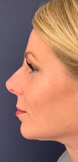 Before and After Dermal Fillers in Long Island