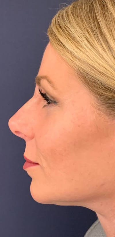 Dermal Fillers Gallery - Patient 4453298 - Image 2