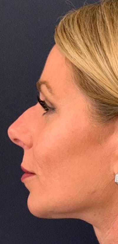 Dermal Fillers Gallery - Patient 4453298 - Image 1