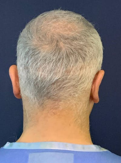 PRF for Hair Restoration Gallery - Patient 4453635 - Image 8