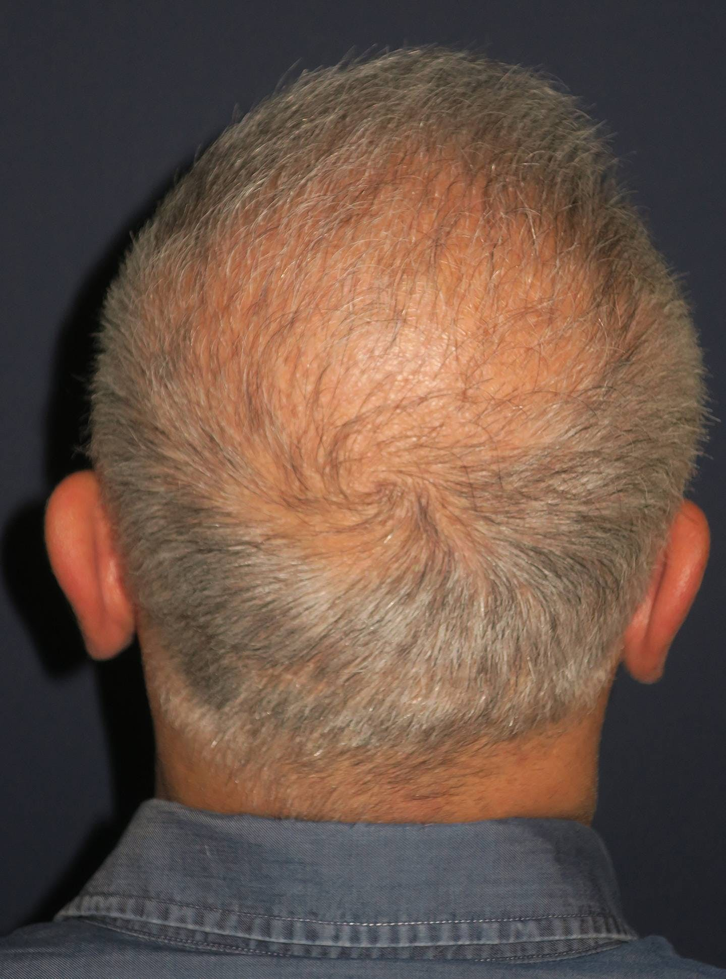PRF for Hair Restoration Gallery - Patient 4453635 - Image 7