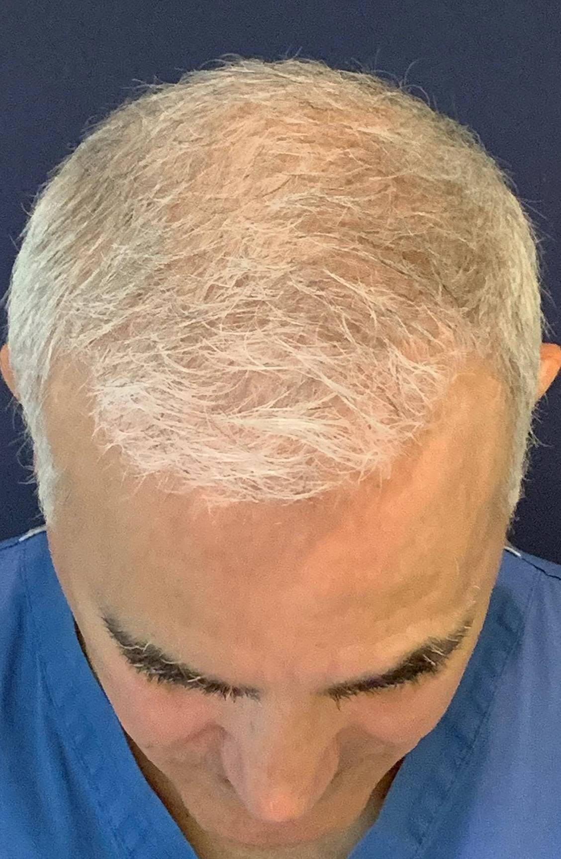 PRF for Hair Restoration Gallery - Patient 4453635 - Image 6