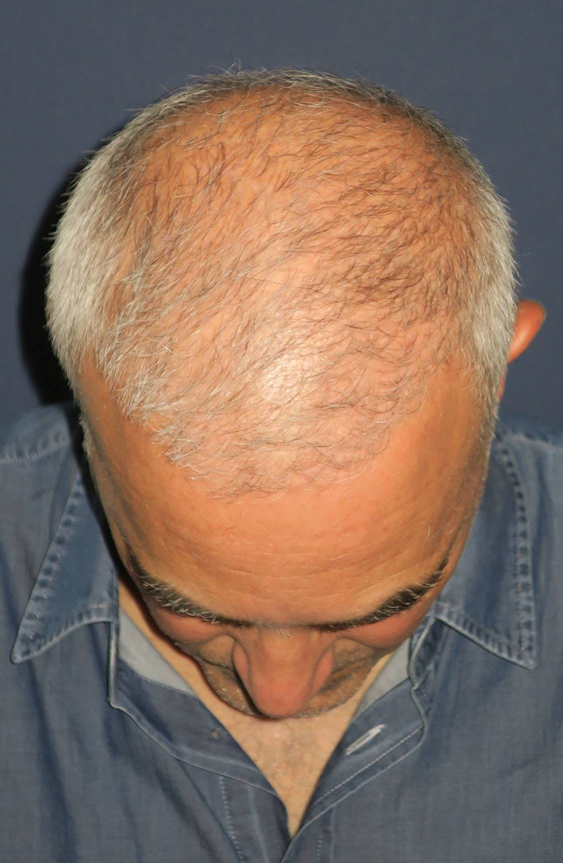 PRF for Hair Restoration Gallery - Patient 4453635 - Image 5