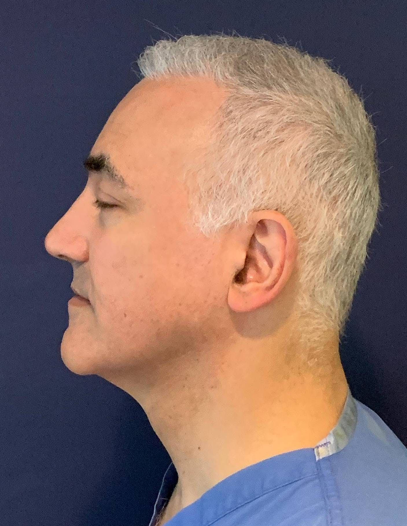 PRF for Hair Restoration Gallery - Patient 4453635 - Image 4