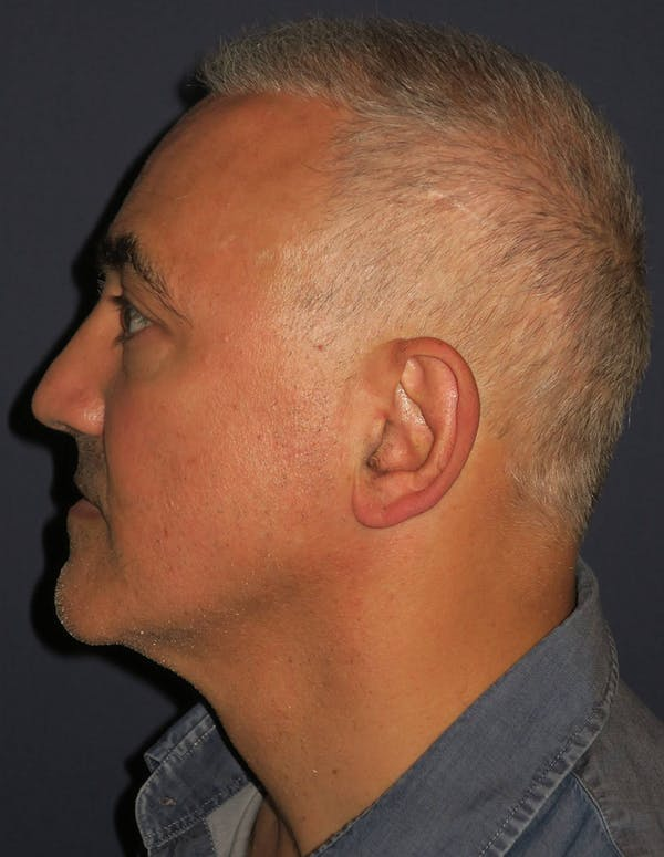 PRF for Hair Restoration Gallery - Patient 4453635 - Image 3