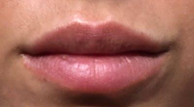 Lip Augmentation Gallery - Patient 4454372 - Image 2