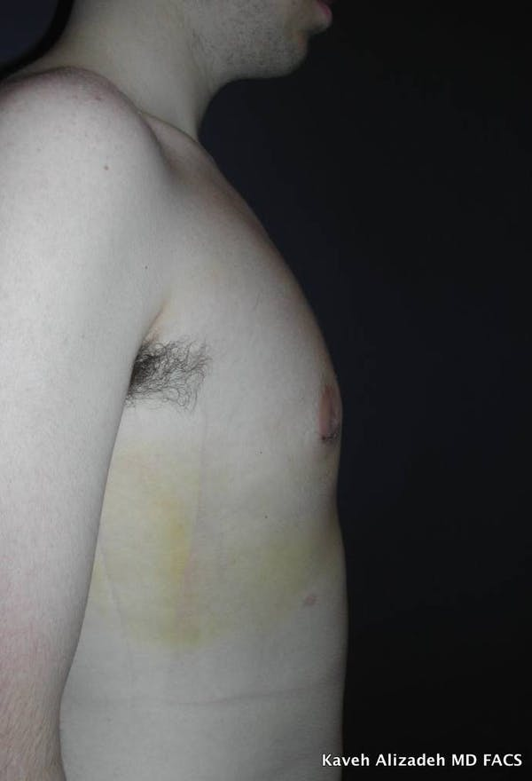 Gynecomastia (Male Breast Reduction) Gallery - Patient 4454732 - Image 2