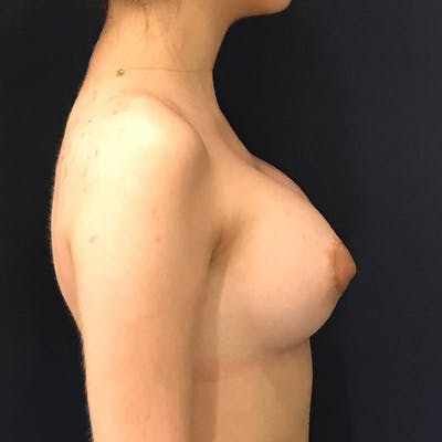 Breast Augmentation Gallery - Patient 4455302 - Image 4
